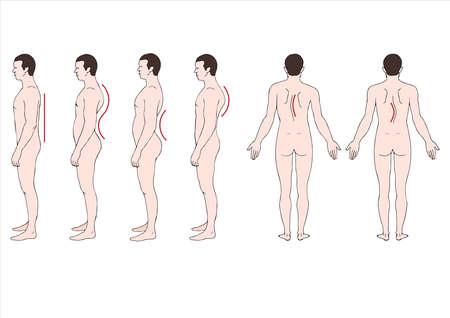 deformstion ilustración educativo de la columna vertebral