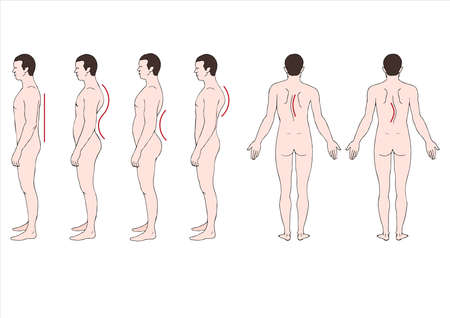jorobado: deformstion ilustraci�n educativo de la columna vertebral