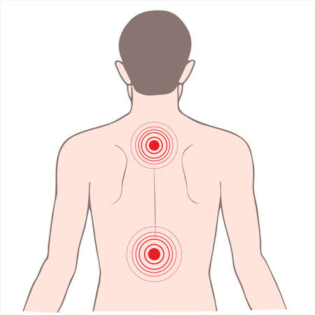 脊椎: 病背中と首の痛み