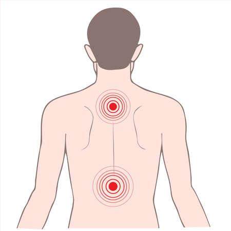 spine pain: enfermedad de dolor de espalda y cuello