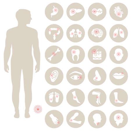dolore ai piedi: vettore anatomia umana, il pane del corpo illustrazione medica