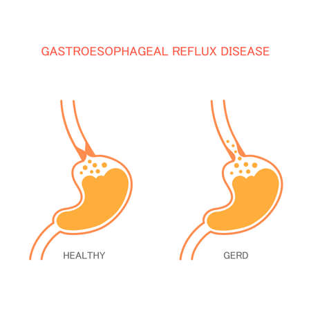 heartburn reflux disease stomach pain human gastric acid Illustration