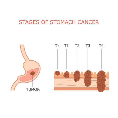 sistema digestivo humano: c�ncer de est�mago etapas anatom�a tumor g�strico sistema digestivo humano Vectores