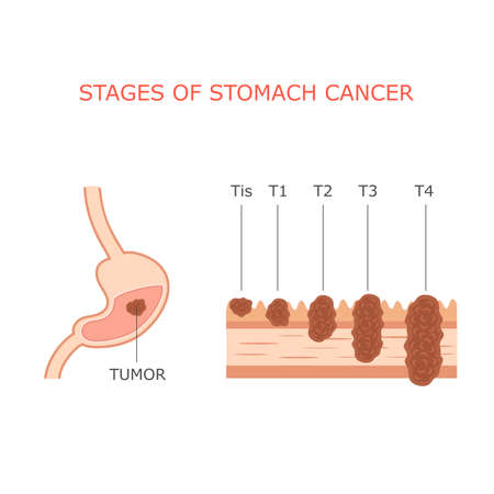 stomach cancer stages gastric tumor anatomy human digestive system
