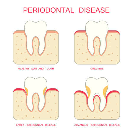 gencives: dents parodontales dentaires périodontistes de maladies des gencives Illustration