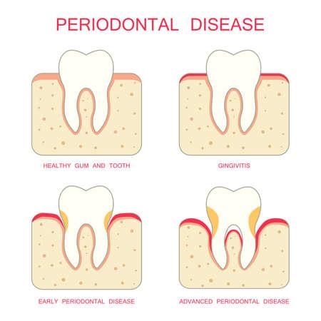 tooth dental periodontal gum disease periodontists Illustration