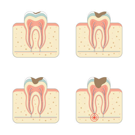 tooth decay: tooth root decay dental disease tinfection