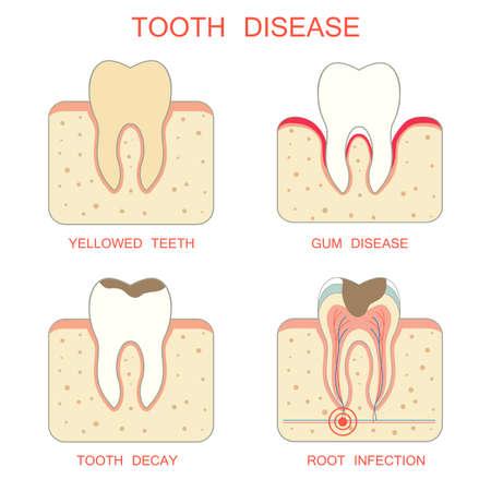 dientes sanos: diente infección de las encías decadencia diseaseperiodontal raíz dientes amarillentos Vectores