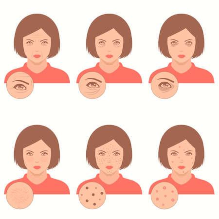 arrugas: cuidado de la cara, arrugas, erupción cutánea, acné, envejecimiento de la piel, problemas dermatológicos Vectores