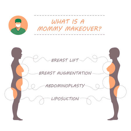 breast implant: Vector woman body, plastic surgery mommy makeover, liposuction, breast augmentation