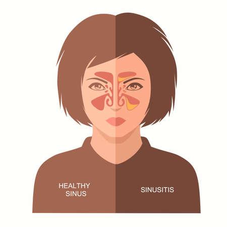 sinusitis disease vector illustration nose, sinus anatomy, human respiratory system