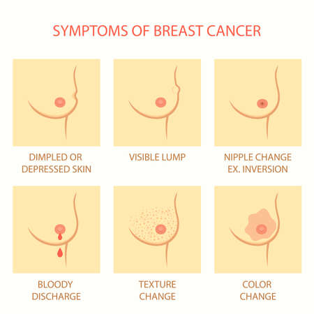 skin symptoms of breast cancer self examination, tumor body exam Illustration