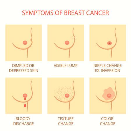 skin symptoms of breast cancer self examination, tumor body exam Illustration