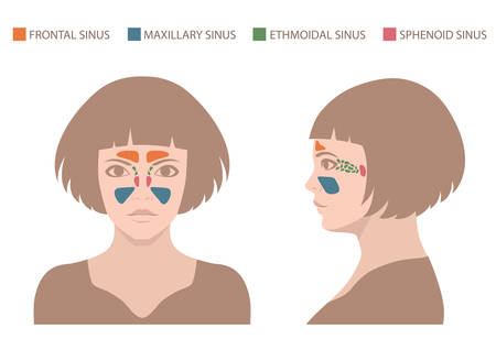polyps: vector illustration nose, sinus anatomy, human respiratory system Illustration