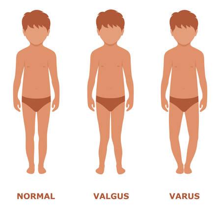 valgus, Varus knee, legs disease, foot illustration