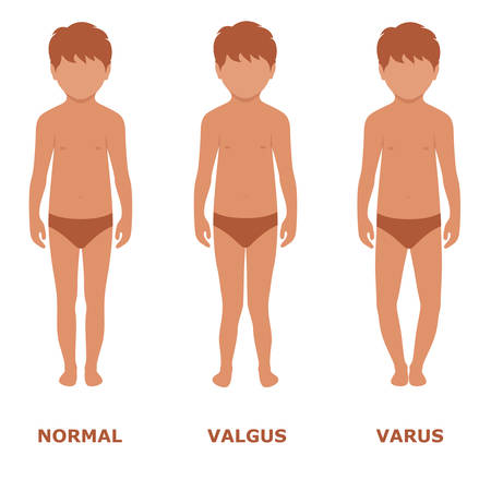 feet care: valgus, Varus knee, legs disease, foot illustration