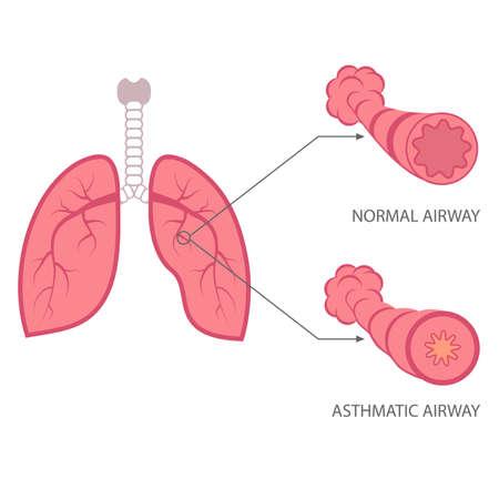 asma: ilustración vectorial asma, enfermedades respiratorias, pulmones bronquiales,