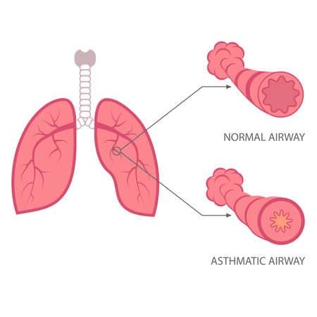 trachea: vector illustration asthma, bronchial, respiratory disease lungs, Illustration