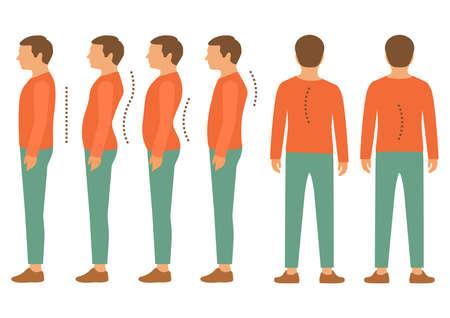 buena postura: escoliosis, enfermedad de la columna lordosis, cuerpo de nuevo defecto de postura Vectores