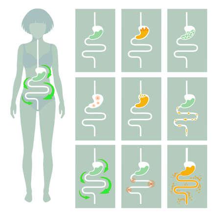 intestino: sistema digestivo humano, ilustración de la enfermedad del tracto digestión