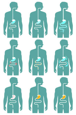 bowel cancer: human digestive system, illustration of digestion tract disease