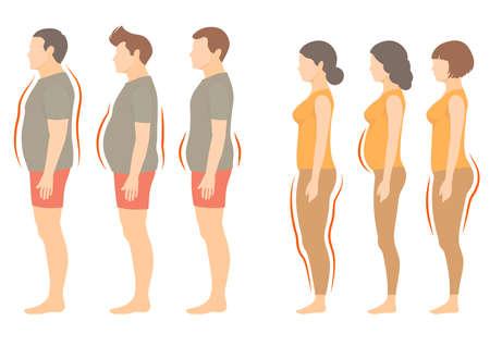 Otyłość kobieta i mężczyzna typu ciała, wektor nadwagą nadmiarem