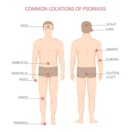Psoriasis illness diagram, human body skin disease,