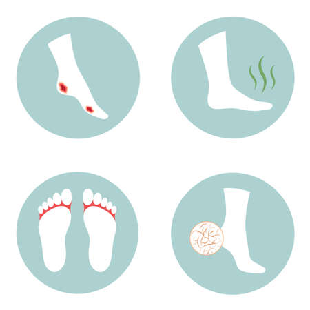 Diabetic ulcer, cracked heel, fungus infection, stinky foot problems,