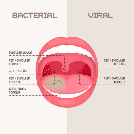 Vector illustration of a bacterial and viral infection, tonsils inflammation.