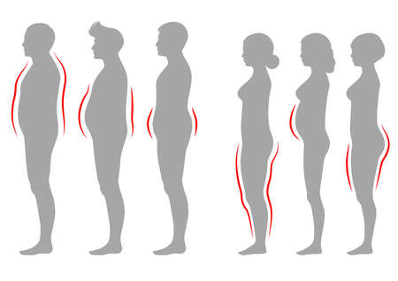 Vector illustration of obesity woman and man body type, vector silhouette overweight silhouette