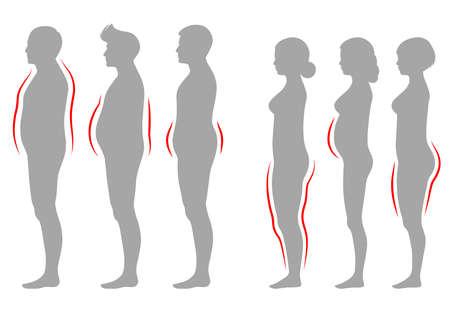 Vector l'illustrazione del tipo di corpo della donna e dell'uomo dell'obesità, siluetta del sovrappeso della siluetta di vettore