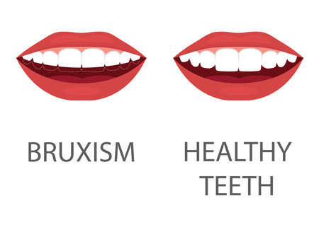 Vector illustration of bruxism. grinding of teeth. tooth appliance. dental care. dentistry health problem.