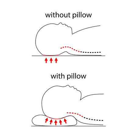 lying in bed: Illustration of spine line when baby sleeps on normal pillow and healthy pillow. Illustration