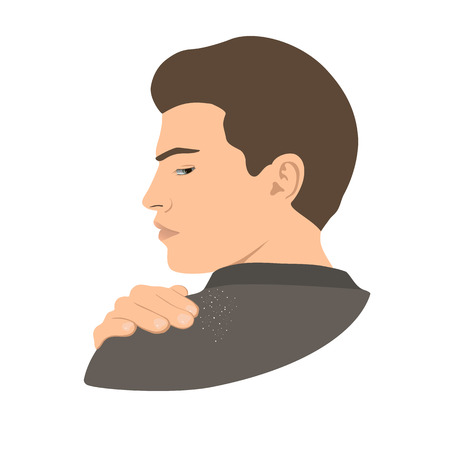 Dandruff on man shoulder. Head, hand, wrist, fingers. Side view. Vector illustration.