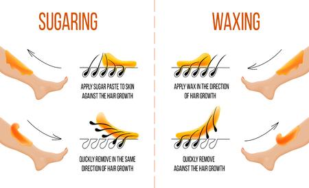 Ceretta e zuccheraggio. Rimozione peli. Pelle liscia e chiara. Epilazione e depilazione dei capelli. Come applicare e utilizzare la cera e la pasta di zucchero. Istruzione di processo. Per infografica web medicina salute Vettoriali