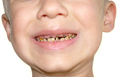 Calf s Teeth decay Toothache because of too many sugar in food Dental Medicine Stock Photo
