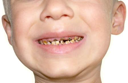 Dolor de muelas Becerro s Teeth decadencia a causa de un exceso de azúcar en muchos alimentos Medicina Dental Foto de archivo