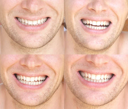 Smile Face Man with natural White Teeth Collage Dental Health Concept and Happiness Emotions photo