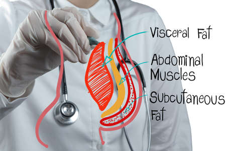 subcutaneous: doctor draws abdominal fat as medical concept