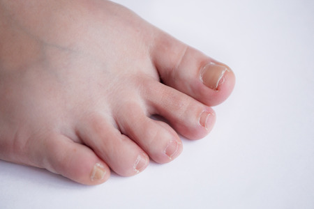 female feet on the white background Imagens