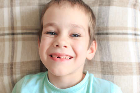 toothless: toothless smile. happy boy with a toothless smile Stock Photo
