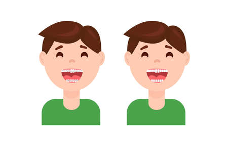 Braces dental treatment before and after. Cute cartoon boy with teeth braces. Smiling kids with a nice smile after wearing braces vector illustration