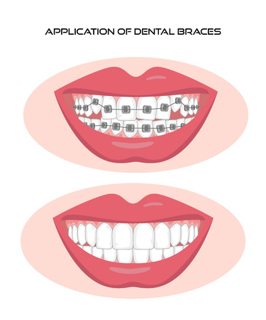 Teeth with braces on white background Vector illustration.