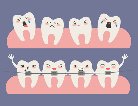 Cartoon Teeth with braces on blue background. Vector illustration.
