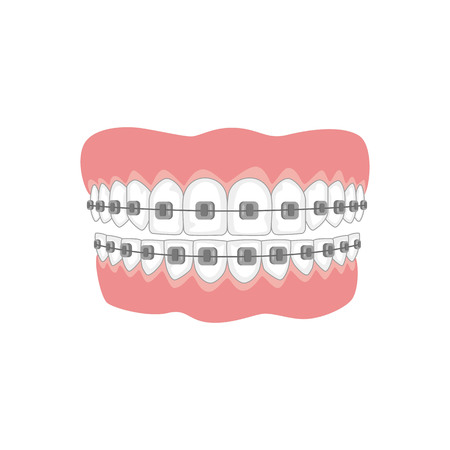 Teeth with braces on white background. Vector illustration. Stock Vector - 95525266