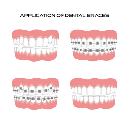 Teeth with braces on white background. Vector illustration.