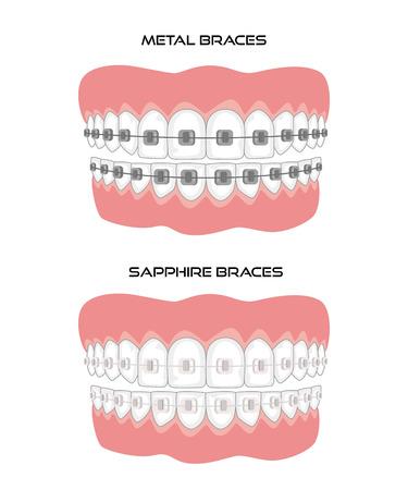 Dents avec croisillons sur fond blanc. Illustration vectorielle. Vecteurs