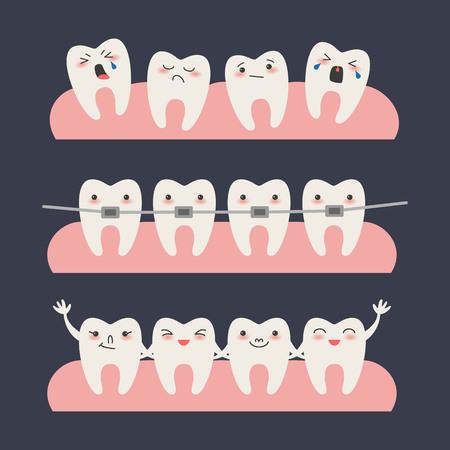 Cartoon Teeth with braces on dark background Vector illustration.