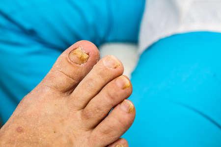 Onychomycosis, a nail disease caused by pathogenic fungi.