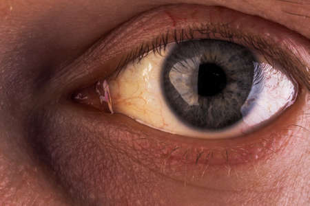 Obstruktiver Ikterus mit starker gelblicher Verfärbung der Augen. Standard-Bild
